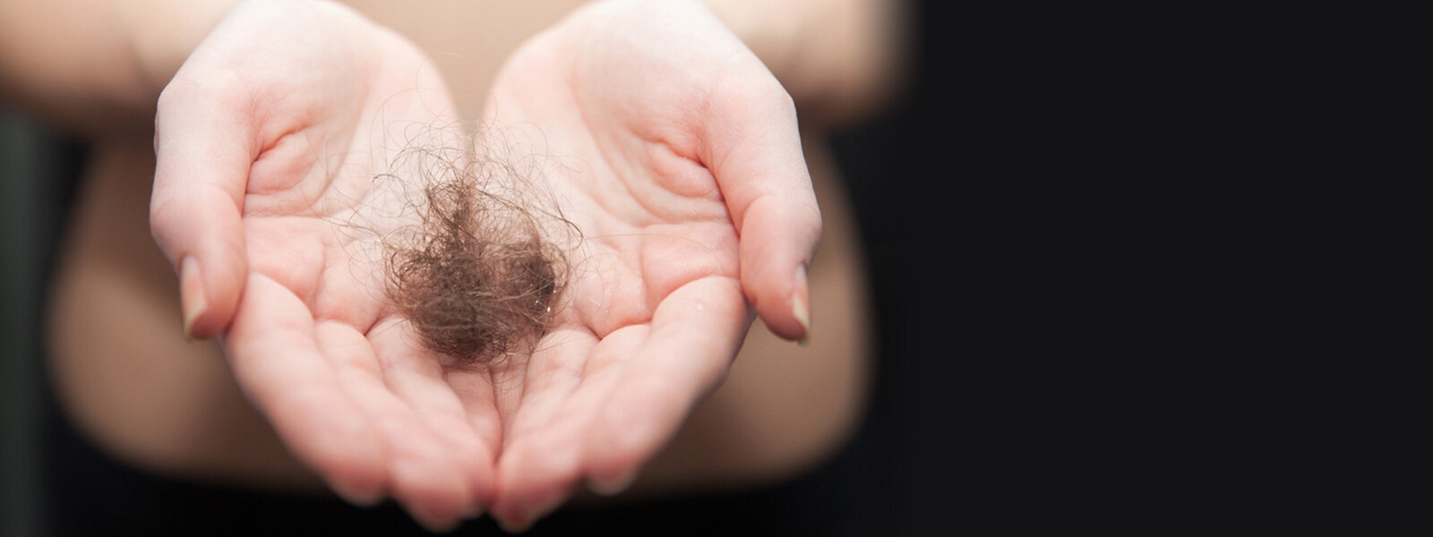 womans hands holding a chunk of lost hair