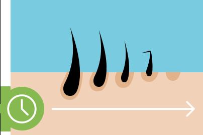 hair follicle decrease