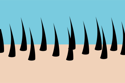 dense hair growth