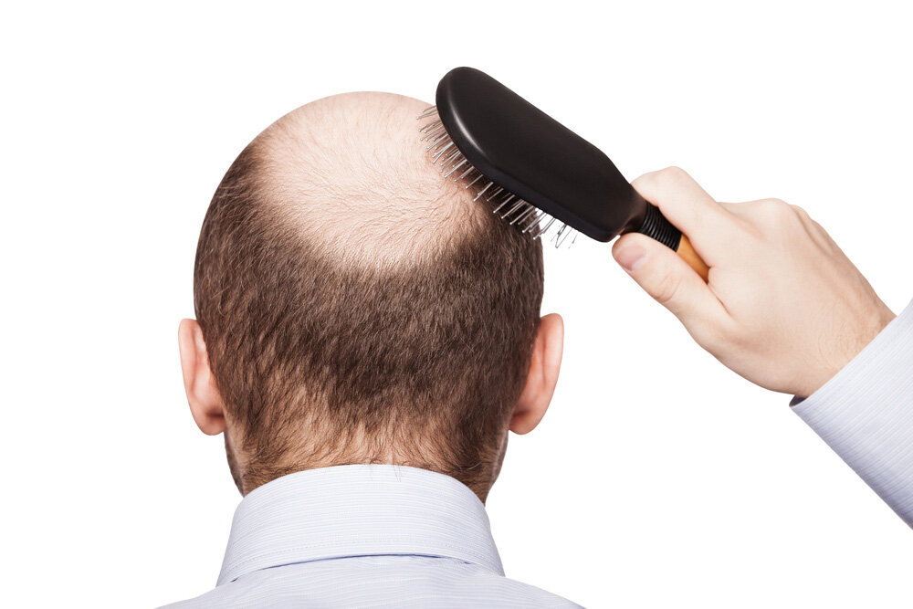 man with hair loss brushing his hair